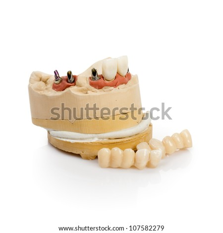 Dental tooth implants in a mold of a persons mouth on white