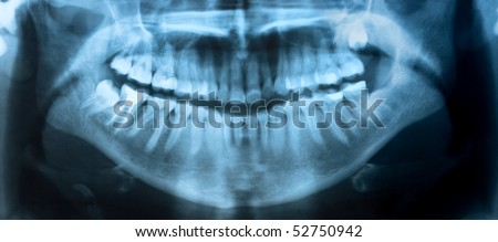 Dental X-Ray. A panoramic x-ray of a mouth, with intact wisdom teeth, one of which is severely impacted.