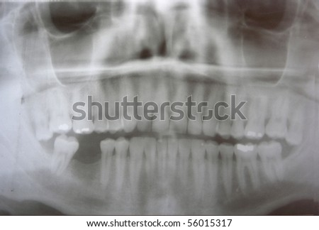 Dental x-ray of man's teeth showing missing tooth on photographic plate.  Release available.   Photographed in 2006