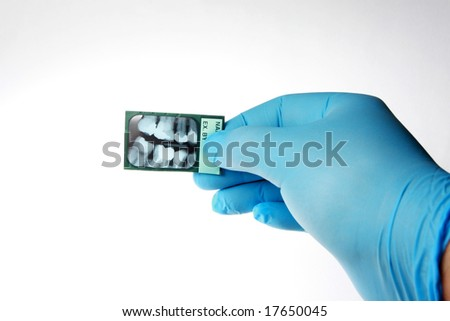 Dentist checking an x-ray of human teeth. Isolated on white,