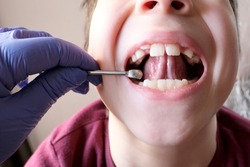 dentist, doctor examines oral cavity of small patient, length of frenum of the tongue, boy, kid performs articulation exercises for mouth, concept of speech disorders, correction