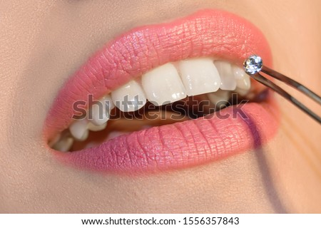 Photo of  Dentist doctor select a gem or rhinestone for the patient's teeth, Mouth close up