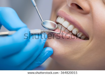 Dentist examining a patient's teeth in the dentist.