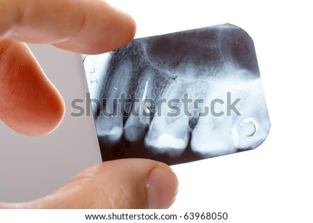 dentist holding an x-ray up to the light