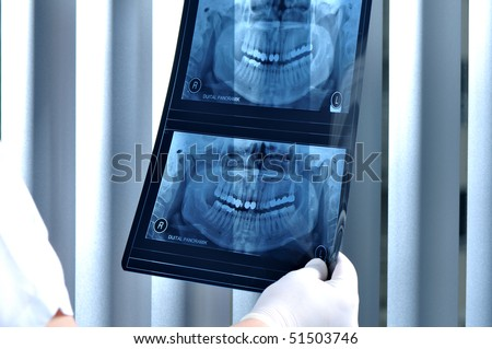 Dentist looking at x ray of patients teeth - a series of DENTAL related images.