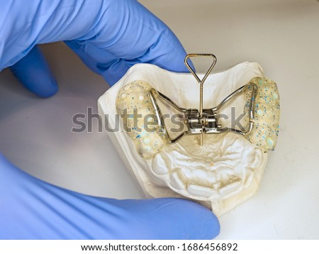 Dentist setting in fingers patient teeth model with Hyrax Expander braces known as rapid palatal expander Foto stock ©