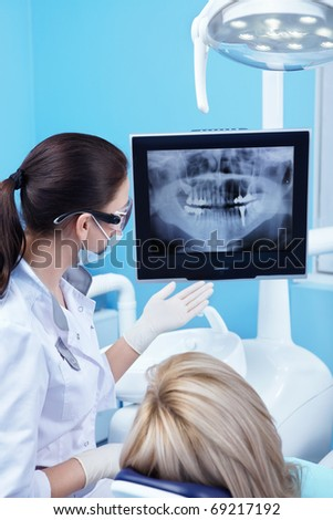 Dentist shows a patient x-ray