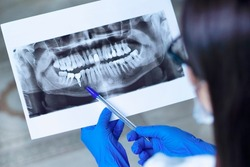 Dentist shows an X-ray of jaw with an implanted tooth . Dentist services concept