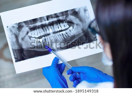 Dentist shows an X-ray of jaw with an implanted tooth . Dentist services concept ストックフォト ©