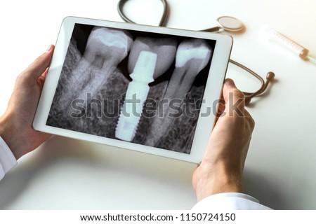 Dentist watching a dental x-ray teeth with dental pivot on digital tablet.