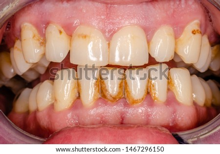 dentition of a middle aged man with calculus and smoker plaque