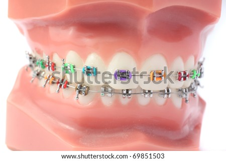 Denture with brackets