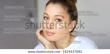 dermal filler treatments .Hyaluronic acid injections for specific areas.Correct wrinkles Photo stock ©