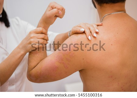 Dermatological skin diseases, psoriasis, more pronounced on the elbows, psoriasis of the skin. Psoriasis is an autoimmune disease that affects the skin, causes skin inflammation, red and scaly.