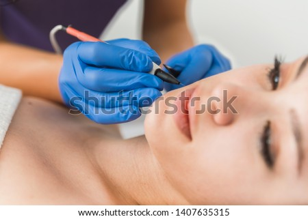 Dermatologist doing hair removal treatment on patient's face with electrolysis Foto stock ©