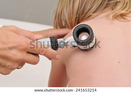 Dermatologist examines child patient birthmark with dermatoscope. Mole checkup. Professional dermoscopy