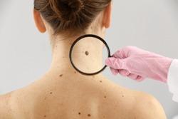 Dermatologist examining moles of patient on light background