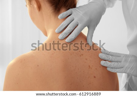 Dermatologist examining patient in clinic, closeup #612916889