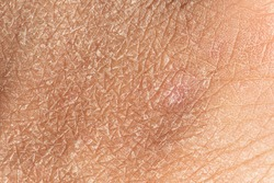 Dermatology and skincare concept with a macro view on the flaking skin of a caucasian person. Detailed view of the cracks and lines filling the frame.