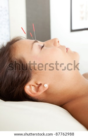 Detail of acupuncture patient with three needles in forehead