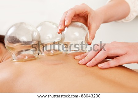 Detail of an acupuncture therapist removing a glass globe in a fire cupping procedure