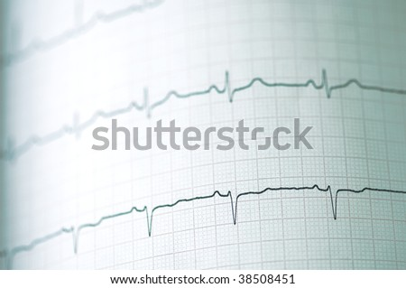 Detail of an electrocardiogram in paper