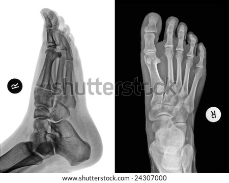 Detail of an x-ray of a foot