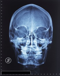 detail of head xray film