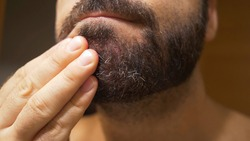 Detail of the man's chin with seborrheic dermatitis in the beard area. Dry skin peels off and causes itching and dandruff.