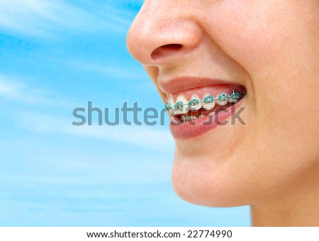 Detail of young woman smile showing white teeth with braces.