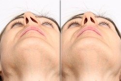 Deviated nasal septum before and after septoplasty surgery comparison