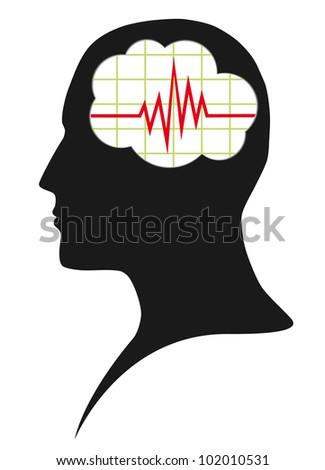 Diagram of brain activity