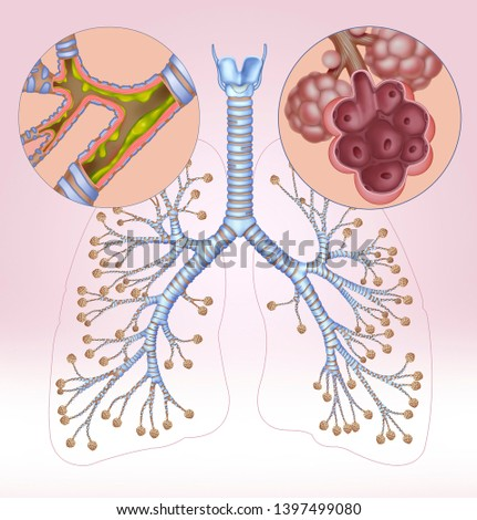 Diagram of the branch of the bronchi, accompany this diagram two circles, one of them has a section of the bronchi affected by bronchitis and another with alveoli affected by an emphysema. Stock photo ©