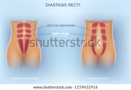 Diastasis Recti also known as Diastasis Rectus Abdominus or abdominal separation, it is common among pregnant women and post birth. There is a gap between the rectus abdominis muscles. Stock photo ©