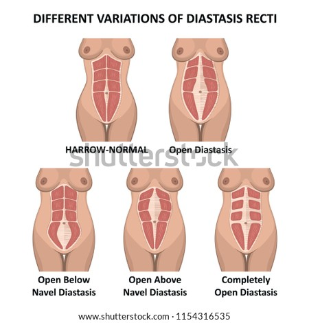different variations of diastasis recti Stock photo ©