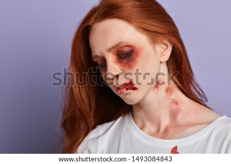 difficult fate, life, woman with awful bruises looking down, close up portrait.innocent victim, accident of victim with severe head trauma