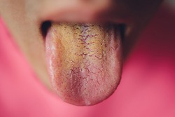 dirty tongue, close-up, yellow due to illness.