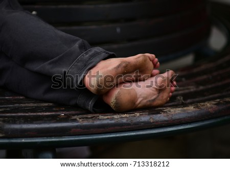 dirty unhygienic foots. photo of pair cracked heels. feet of homeless man. #713318212