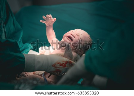 Doctor and nurse are pulling a new born baby from mom's abdomen - Concept Genesis