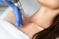 Doctor beautician makes laser tattoo removal on the neck of a young brunette woman in the salon. Aesthetic cosmetology, skin treatment and tattoo removal.