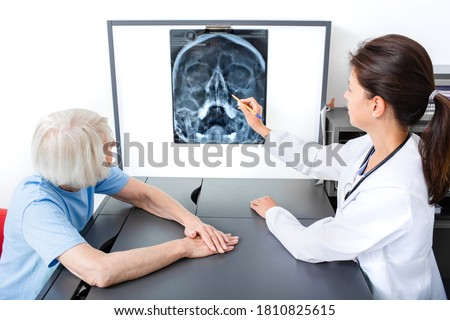 Doctor consider and discuss with senior patient X-ray of her head and maxillary sinuses. Diagnostics and treatment of sinusitis and frontal sinusitis Stock fotó ©