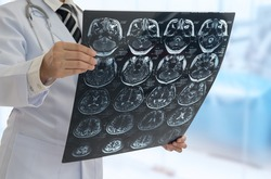 Doctor diagnose film x-ray image of brain patient at operating room in hospital. medical brain concept.