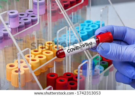doctor epidemiologist holding blood tube for test detection of SARS 2019-ncov or covid19 virus / Doctor testing with blood test tube from patient infected with Coronavirus covid-19 virus or Sars-Cov-2