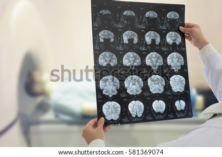 Doctor examines film x-ray brain by mri of the patient at ct scan room.