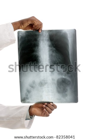Doctor examining the X-ray over white.