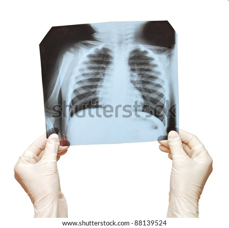Doctor examining the X-ray over white - stock photo