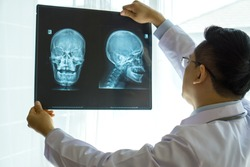 doctor examining x-ray film of Skull on white background - medical concept