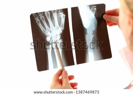 Doctor Female Hand Holding Hand Xray Photography. Radiologist Check Bone Trauma on White Background. Radiology Diagnostic. Medicine Specialist Analyzing Skeleton Injury Roentgen on Film Image