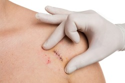 Doctor hands checking stitches after mold removal surgery on woman shoulder