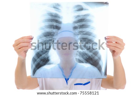 Doctor holding an x-ray edges. Isolated on white background